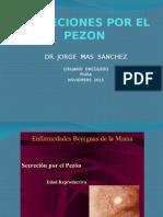 Secreciones Por El Pezon