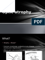 Optic Atrophy Simplified