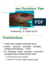 Karsinoma Payudara Tipe Invasif