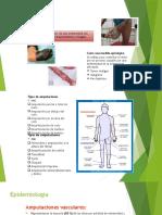 Fisioterapia y Acupuntura en Paciente Amputado
