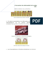Las Causas Más Frecuentes de Enfermedad de La Pulpa Dental Son