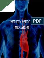 Pae Infarto