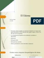 El Edema