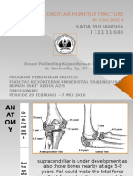 DT Supracondylar Humerus Fracture in Children
