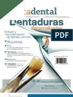 alta tecnica dental - dentaduras personalizadas