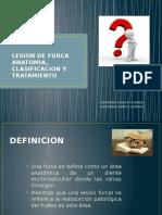 Lesion de Furca Anatomia, Clasificacion y Tratamiento