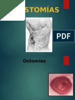 OSTEOMIAS