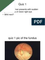 Eye Elos Nes Algorithm Quiz 2.2.16