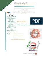 Radiografias Oclusales de Un Paciente Desdentado Total, Reparos Anatomicos y Su Interpretacion Radiografica