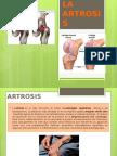 La Artrosis (1)