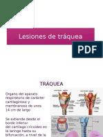 Lesiones de tráquea manejo quirúrgico
