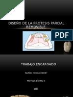 Diseño de prótesis
