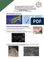 Sartd Protocolos Anestesia Traumatologia Cirugiahombro