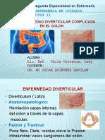 Diverticulitis complicada exposicion.pptx