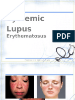 Systemic Lupus Erythematosus Sle