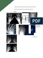 Arthritis radiology
