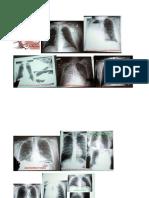 Torax Con Patologias
