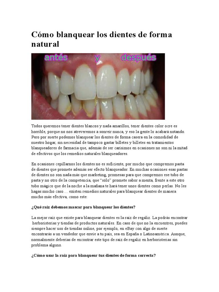 Como aclarar los dientes de forma natural