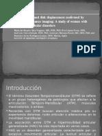 HIPERMOVILIDAD CONDILAR 2.pptx