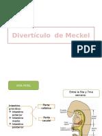 Divertículo-de-Meckel.pptx