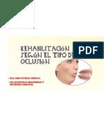 Rehabilitación Según El Tipo de Oclusión. Fga. Nidia Patricia Cedeño O.