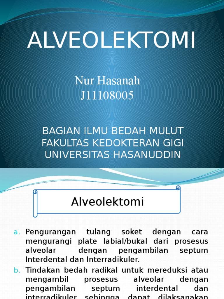Alveolectomy Pdf