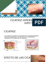Cicatriz Hipersensible Hipo Sensible