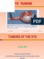 Tumor of the Eye