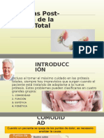 Problemas de Dentadura Posterior