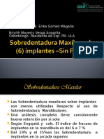 Sobredentadura Maxilar Sobre (6) Implantes –