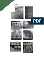 Interpretasi radiograf intra oral.pdf