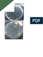 Cultivo Microbiología