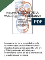 A Normal Ida Des de La Vasculatura Pulmonar