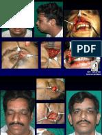 Cases of Maxillofacial