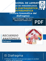 Hernia Diafragmática Postraumática