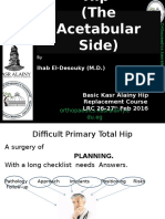 Difficult Primary Total Hip Arthroplasty (the acetabular side)