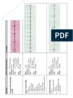 EKG Flash Cards.pdf