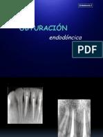PDF Obturacion Endo 2
