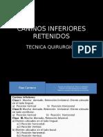 CANINOS INFERIORES RETENIDOS