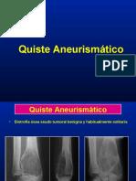 05- Quiste Aneurismatico
