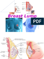Breast Lump