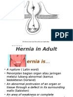 Hernia Adult