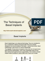 The Techniques of Basal Implants