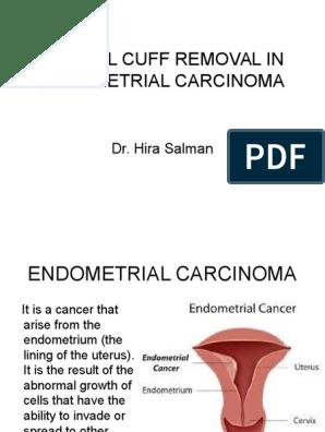 cancer endometrial que es tratament de helmint la sugari