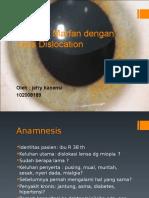 sindrom Marfan jefry