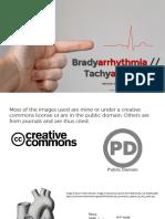 Brady Tachyarrhythmia