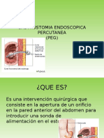 GASTROSTOMIA ENDOSCOPICA