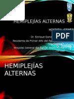 Hemiplejías alternas2