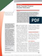 acute traumatic posterior shoulder dislocation.pdf