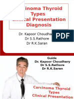 Carcinoma Thyroid